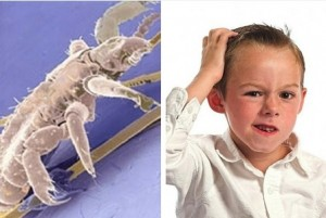chemicals in lice removal products